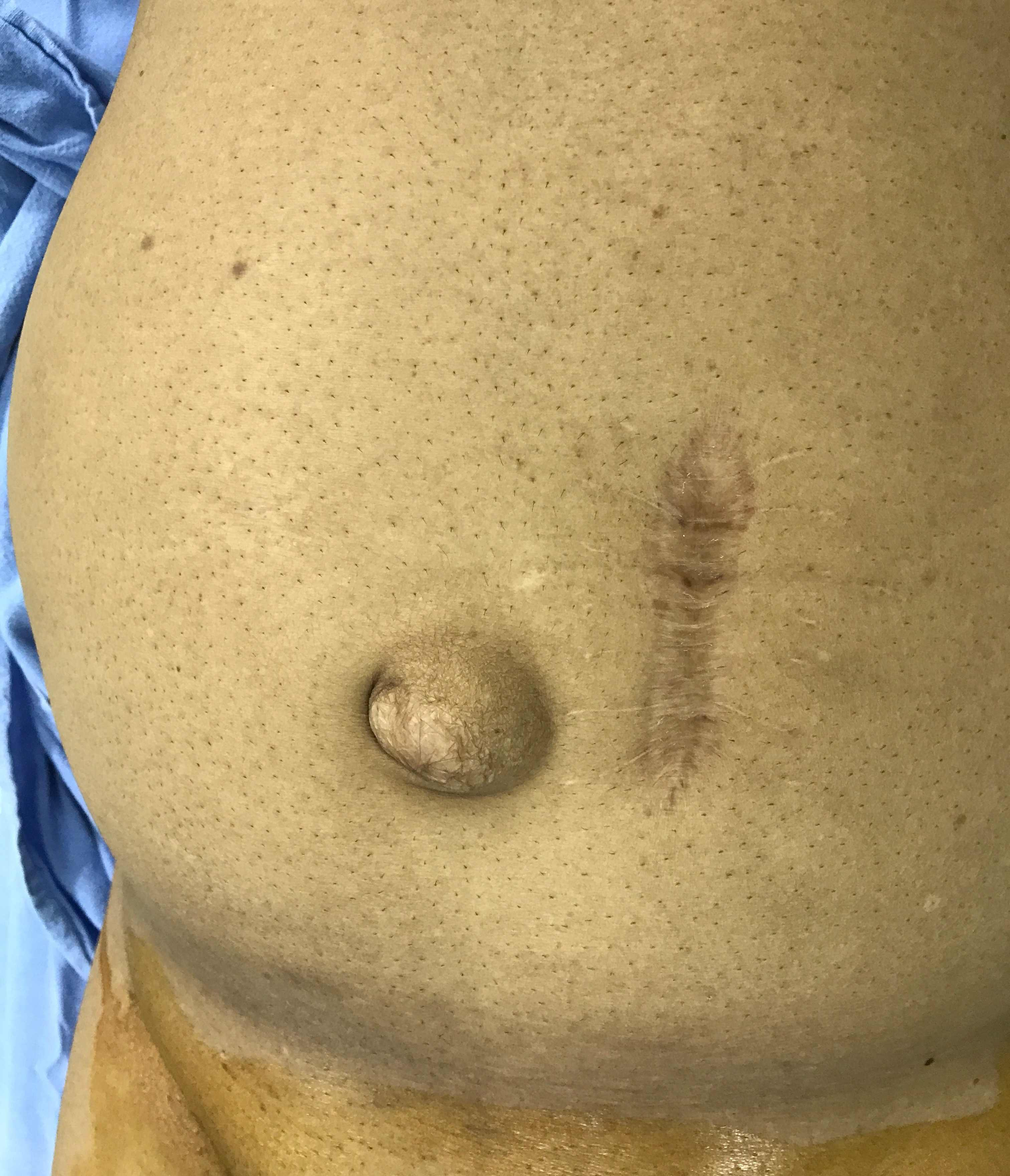 Umbilical Hernia-compressed