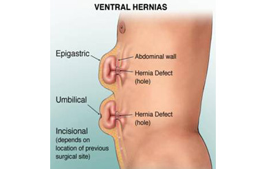 Ventral Hernia Surgery new delhi