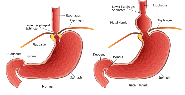 hiatal hernia treatment in new delhi, delhi