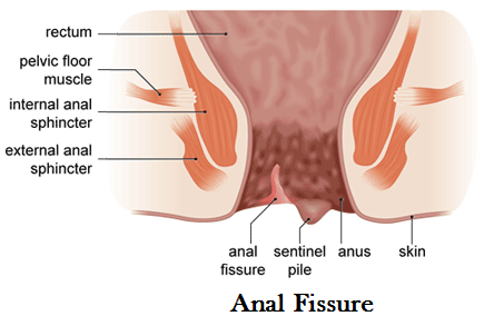 Treatment of anal fissure — img 13